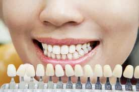 Safe teeth whitening tips
